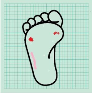 足の裏の情報