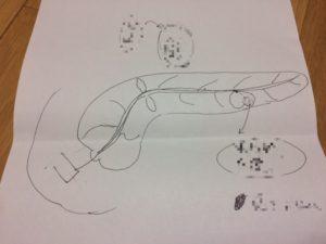 医師が書いた内視鏡で見た膵臓の図