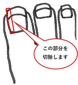 抜爪する部分の図解