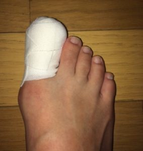 巻き爪の手術後の足