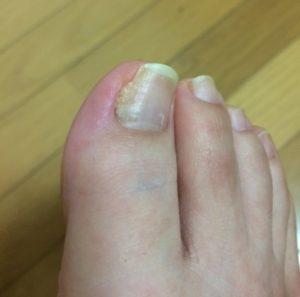 陥入爪回復後の写真