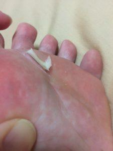 剥がれかかった足の裏の皮