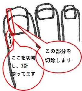 陥入爪複雑なものの図解