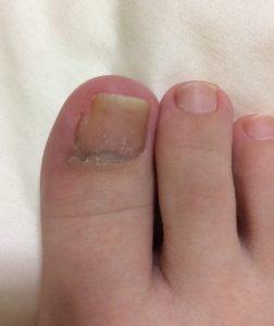 陥入爪手術後の足