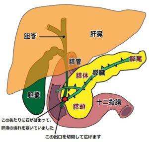 内視鏡的乳頭切開術の説明図