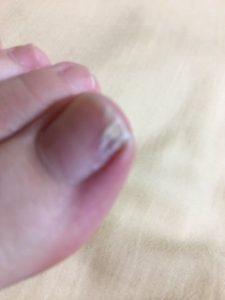 ぶつけた親指