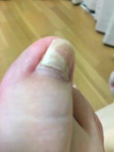 2層に割れた爪
